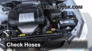 2002-2005 Hyundai Sonata Hose Check